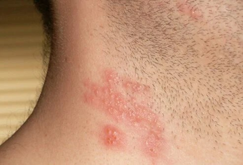Herpes Outbreak On Neck? 2