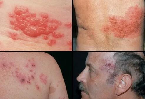 Can shingles rash be cultured? 2