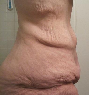 fat butt cellulite ass