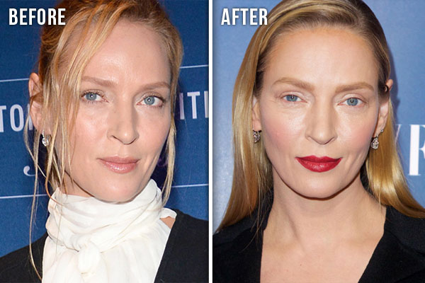 Uma Thurman Plastic Surgery Before and After Pic