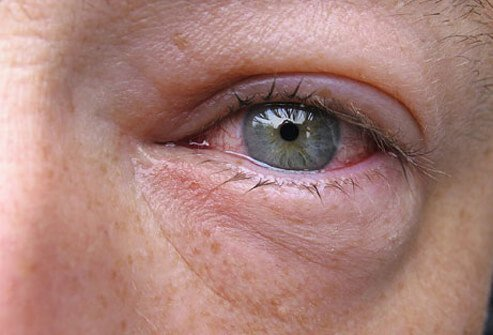 A Close Up View Of Heavy Inflammation In The Eye