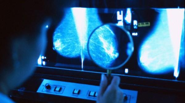Che i test per la diagnosi precoce del cancro non sono pericolosi