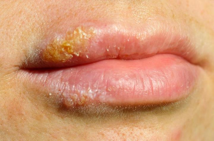 COLD SORE? HERPES? KISS? SEX? HELP!? 2