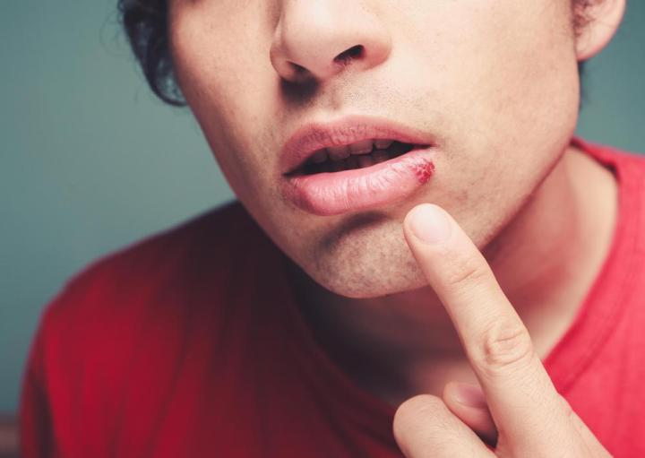 Can Herpes Get Into Your Bloodstream And Poison You If Not Treated? 1