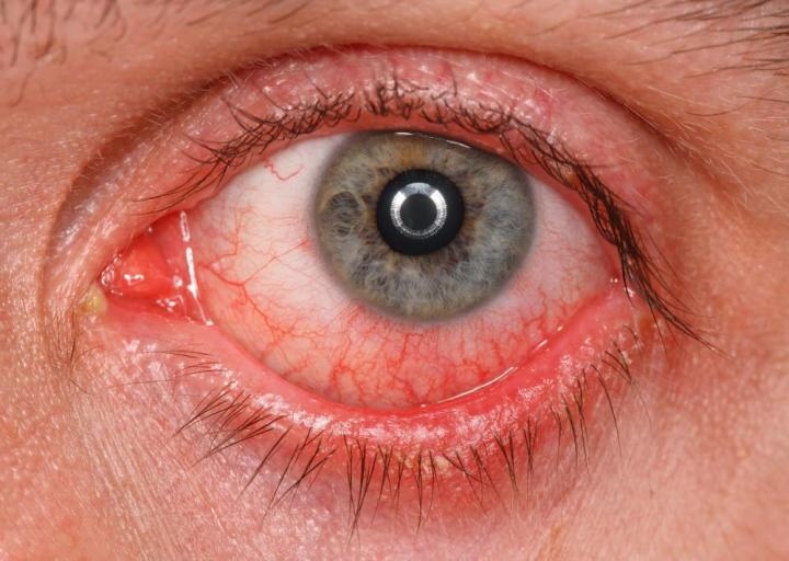 Could I Get Herpes In My EYE? 2