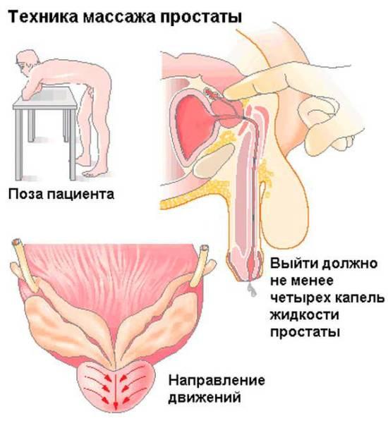 Техника массажа простаты (предстательной железы)