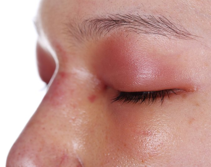 An Allergic Reaction That Causes The Eyes To Swell Swollen