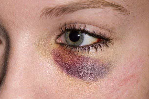 眼袋手術後有哪些併發症?我該如何處理全攻略?
