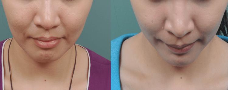 用自體脂肪移植下巴,打造出完美V型臉!