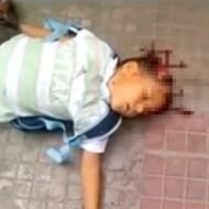 【グロ動画:戦争】シリアの戦争に巻き込まれた少年・・・頭が割れて即死