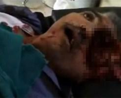 【グロ動画:死体】目を撃たれたて頭の半分が無くなっている死体・・・
