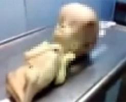 【閲覧注意:奇形】宇宙人のような子供の死体・・・奇形なのかそれとも・・・