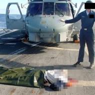 【閲覧注意:画像】ヘリコプターの翼に頭が当たるとこうなる・・・