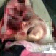 【グロ動画】シリアの戦争で犠牲になった少年少女たち