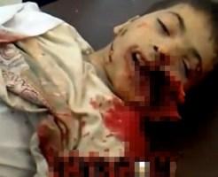 【グロ動画】砲撃を受けた子供・・・顔が潰れて腸が飛び出す
