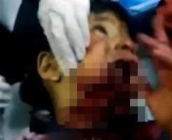 【グロ:鳥肌】子供の口から首が抉れて顎が・・・
