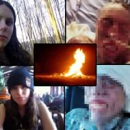 【閲覧注意】美少女が顔面の80%を焼かれ悲惨な姿に・・・