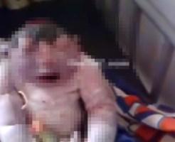 【激グロ動画】生まれて来た奇形児があまりにもグロい・・・