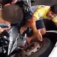 【グロ注意】バイクと車に足を挟まって取れたと思ったら肉がなくなってた…