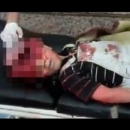 【閲覧注意】爆発に巻き込まれた少年・・・脳みそが全部なくなって死亡