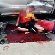 【グロ事故】血塗れでギリギリ生きてしまった人の行動・・・