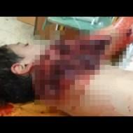 【グロ注意】榴散弾で撃たれた子供の身体がありえない状態に・・・