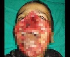 【グロ画像】鼻から下顎まで無くなった少年の顔を綺麗に復元してみた・・・