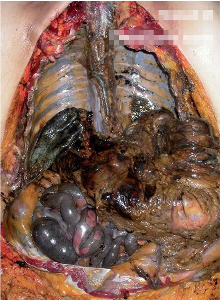 【グロ画像】塩酸飲んで自殺したらどうなるか見たい? ※体内解剖画像