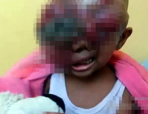 【グロ動画】生まれた瞬間に末期がんの赤ちゃんが生まれる・・・ ※閲覧注意