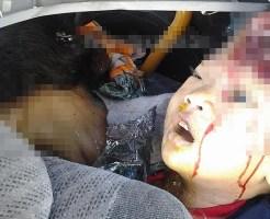 【閲覧注意】事故の時チャイルドシートしてなかった子供がこれ・・・