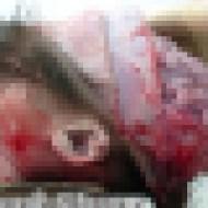 【赤ちゃん】死体解剖して臓器と脳みそ取り出してみた ※グロ画像・閲覧注意