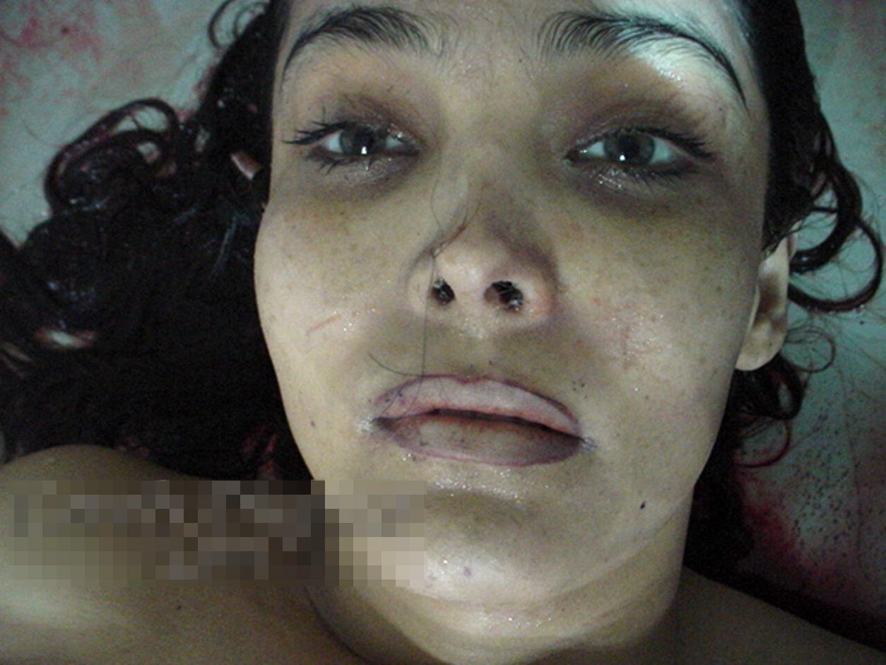 【グ●画像】ピル大量に飲んで自殺した女解剖したらとんでもない量飲んでた件・・・