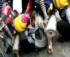 【グロ注意】少女の足がバイクの後輪に巻き込まれる・・・