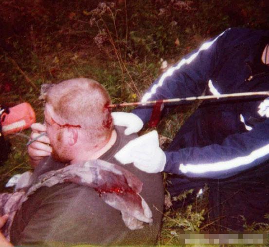 【グ●画像】動物ハント中にクロスボウの矢が頭に刺さったら・・・