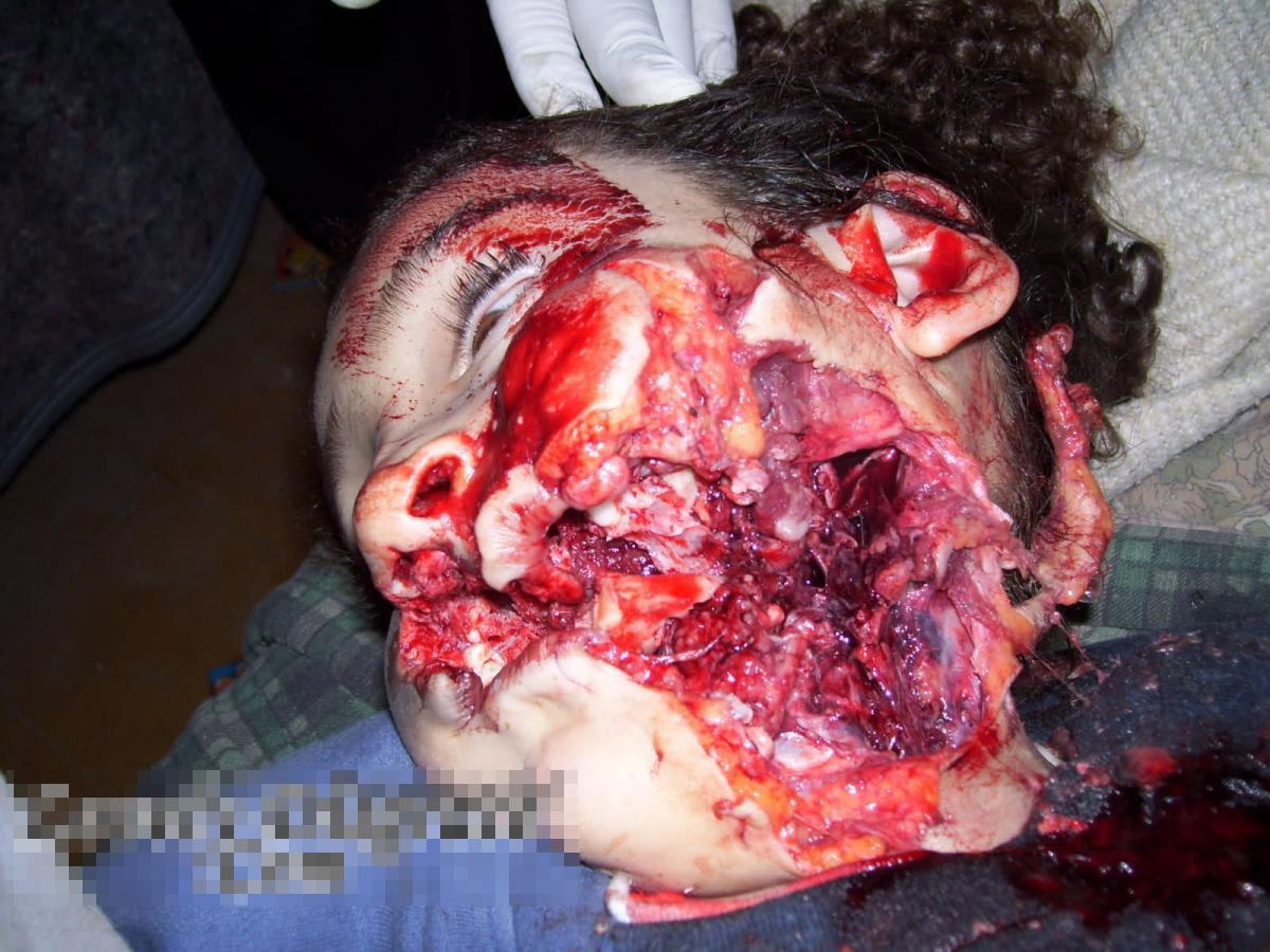 【悲劇】10歳少女でもヘッドショットされるぐらい治安悪い国でオリンピック開催するんだってよ・・・ ※グ●画像