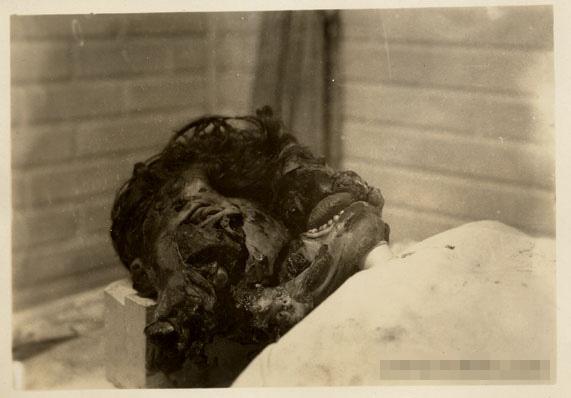 【グ●画像】遺体修復する職人技が怖くも神がかってる件 グチャグチャ顔面がここまで修復できました ※閲覧注意