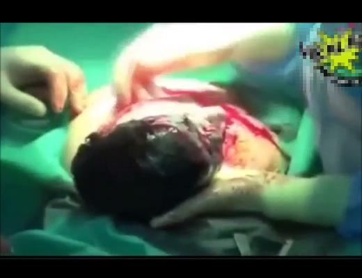 【死産】ぼて腹妊婦が撃たれた→中の赤ちゃんだけでも助けようと取り出す一部始終・・・ ※グロ動画