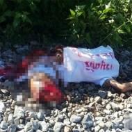【※閲覧注意】両足を列車に轢かれた女性の末路をご覧下さい。
