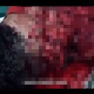 【グロ動画】マチェット(ナタ)で顔を重点的に切られたらどうなるかよく分かる映像 ※閲覧注意