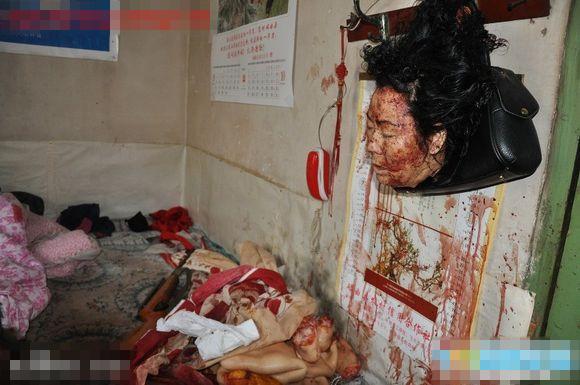 【超閲覧注意】なにがあったんや・・・食べられた・・・?全身の皮剥がれて臓器取り出された最悪にカオスな女の子・・・・・・in中国 ※グロ画像