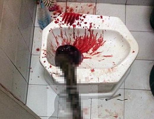【グロ注意】タイでトイレをしていた男性、下水道から出てきたヘビにチ●コを噛まれ病院に運ばれる