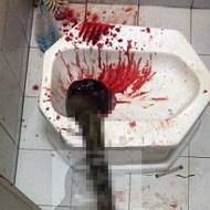【グロ注意】タイでトイレをしていた男性、下水道から出てきたヘビにチンコを噛まれ病院に運ばれる