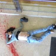 【グロ画像】頭から飛び降り自殺した女の子 → 顔って縦にカチ割れることもあるらしい・・・ ※閲覧注意