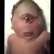 【閲覧注意】妊娠中に放射線被ばくした妊婦から産まれた子供は単眼症だった ※動画
