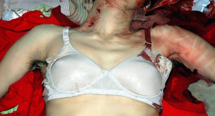 【レ●プ 解剖】メスでお腹くぱぁ 股間もくぱぁ こんな事されたら死に切れない・・・・・・ ※画像