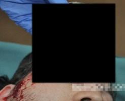 【グロ画像】目に癌(ガン)はできない???いいえできます 眼腫瘍になったらこうなる ※閲覧注意