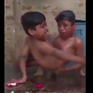 【奇形児】現実世界でフュージョンし損ねた結合双生児になった少年二人・・・ ※閲覧注意