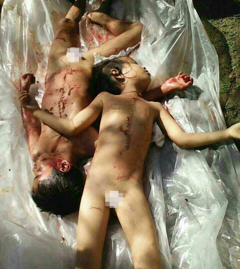 【ロリ死体】腹に切り傷ある男女の子供の死体放置されてたけど臓器売買されてたっぽい・・・画像、閲覧注意