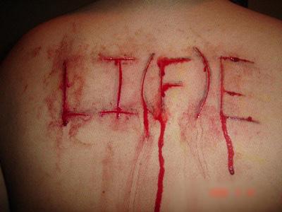 【グロ画像】重度の自傷癖持った女から送られてきた自撮り写真エグ過ぎ・・・身体中切り傷だらけやんけ