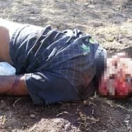 【グロ:死体】顔の皮を綺麗に削ぎ落とされて亡くなってる17歳の少年・・・